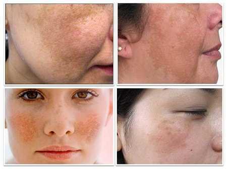 Những nguyên nhân chính gây ra nám da?